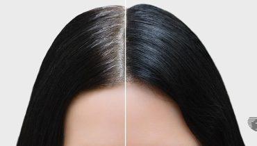cheveux blancs remède