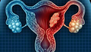 Le cancer de l'utérus